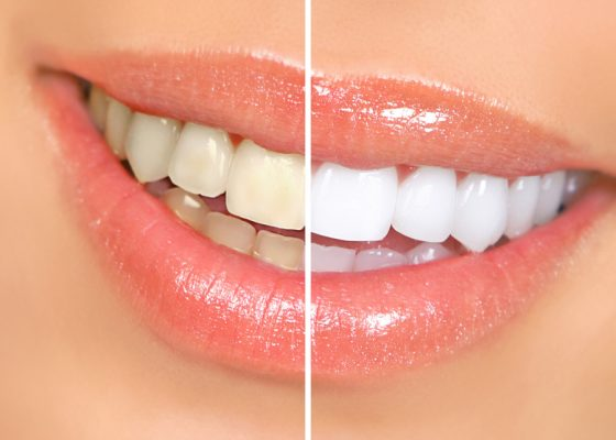 """How Often Should I Get My Teeth Cleaned To Prevent Gum Disease And Teeth Decay?"""