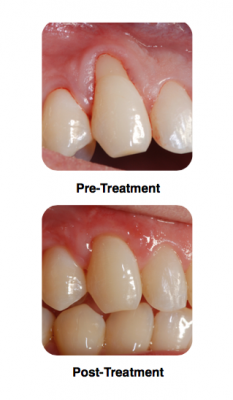 Gum Graft Surgery Using AlloDerm And PRP, Before And After Pictures
