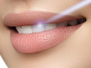 Laser (LANAP) for Saving Natural Teeth