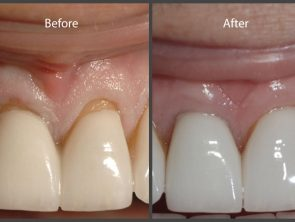 AlloDerm® for Gum Recession