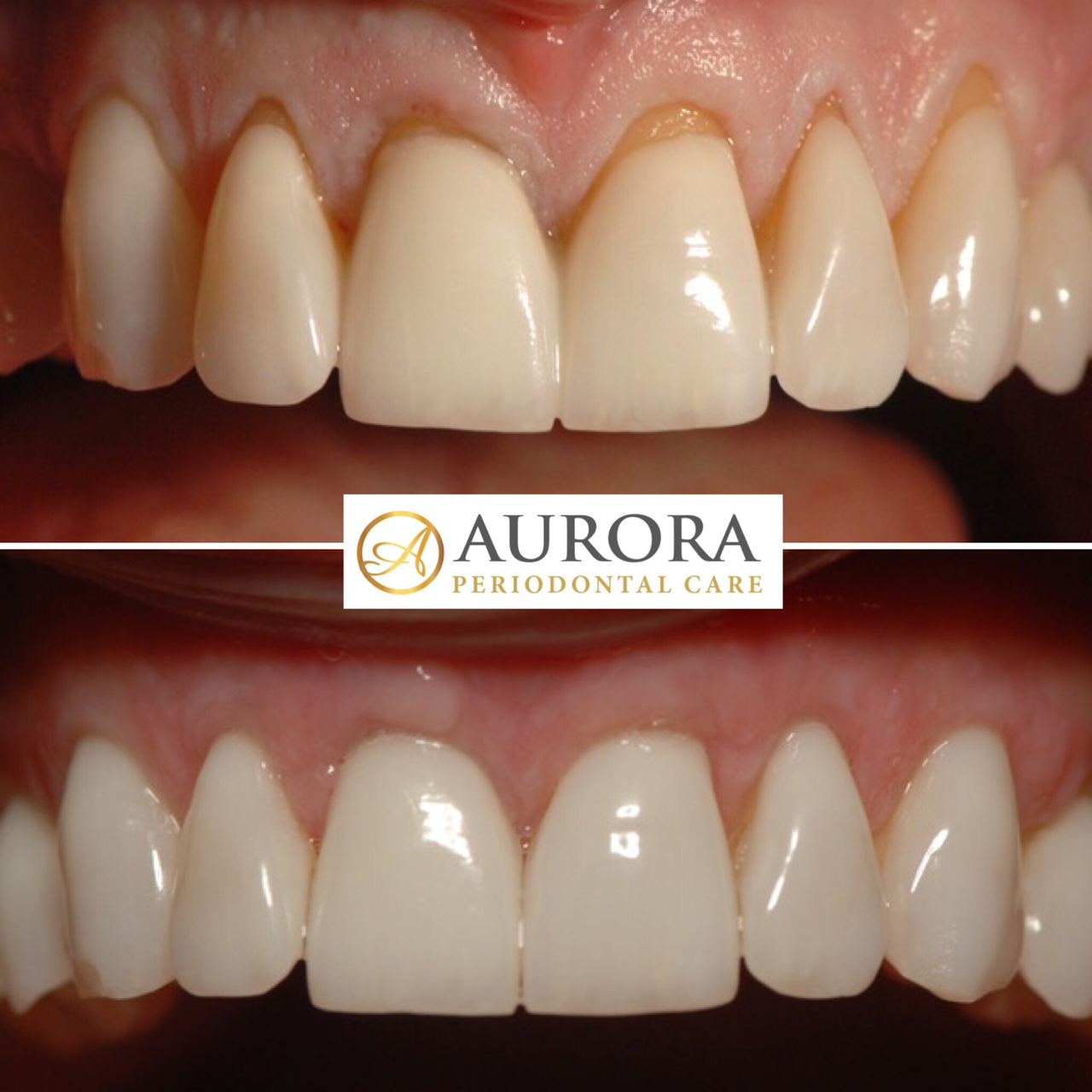 Dr. Sharona Talks About Using AlloDerm To Treat Gum Recession
