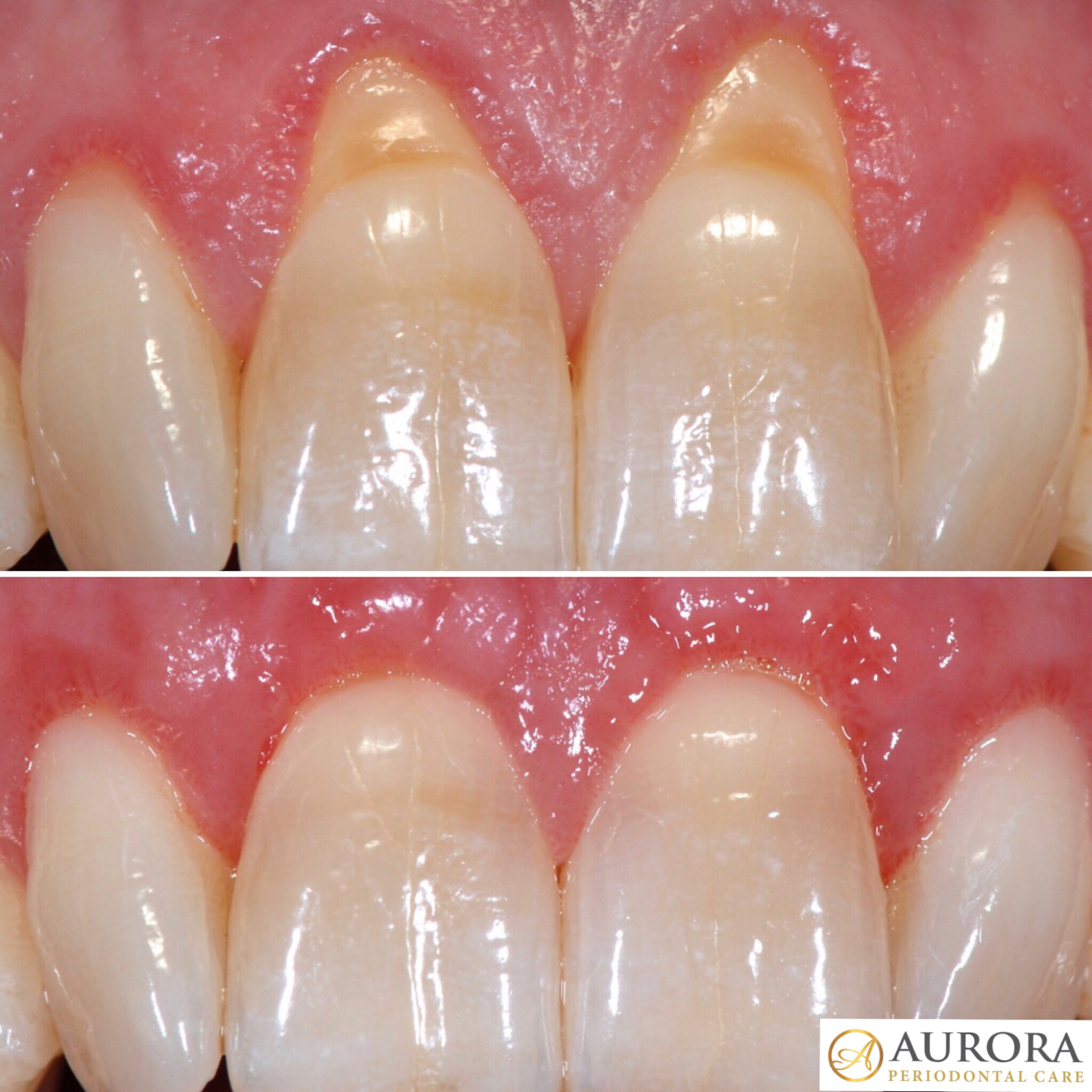 Before and After Alloderm Logo