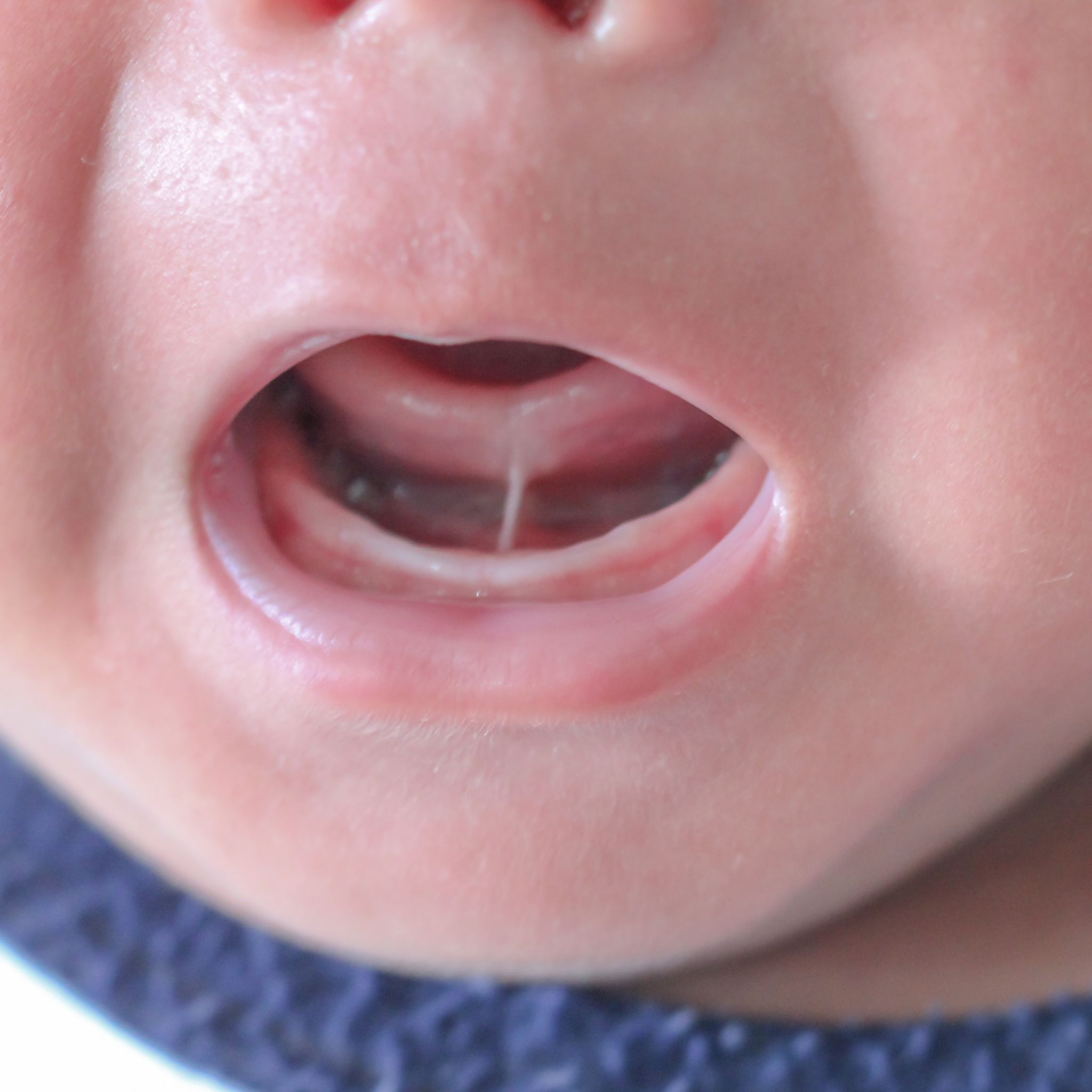 Dr. Sharona Discusses Tongue-Tie in Children