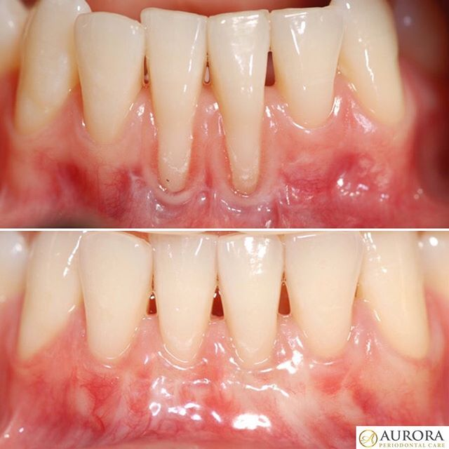 alloderm treatment of gum recession before after